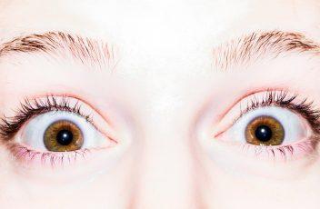 brennende-Augen-pexels-Optik-Westermeier